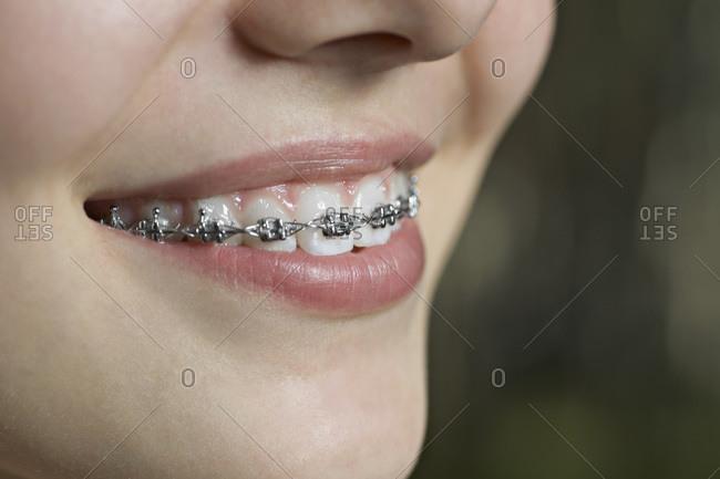 A smiling teenager with dental braces, ECU