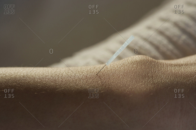 Young woman receiving acupuncture on wrist