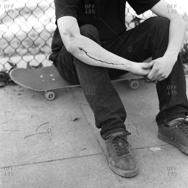 Skater with wounded arm sitting on skateboard
