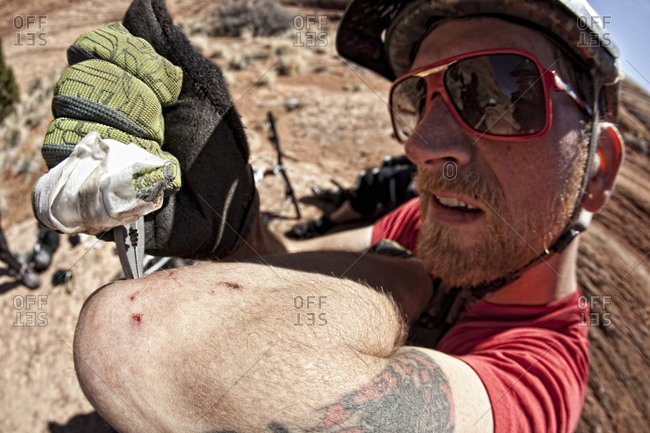 Man pulling cactus needles out of his arm with pliers after crashing his bike into a cactus.