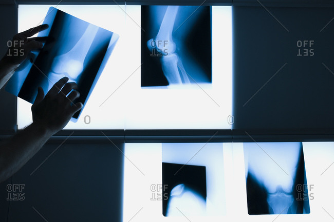Male hands holding xrays - Offset
