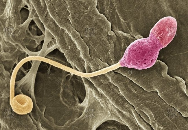 Magnification view of a deformed sperm cell under a Color scanning electron micrograph