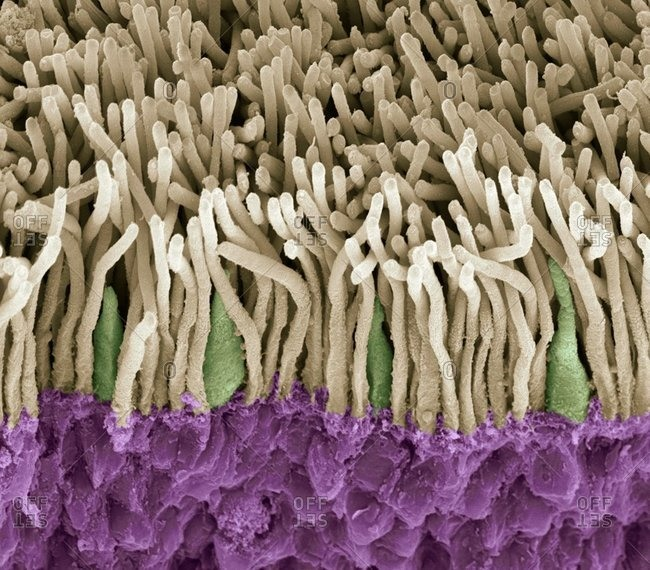 Magnification view of retina under a Color scanning electron micrograph