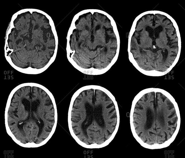 Magnification view of Alzheimer's disease. Series of computed tomography (CT) scans of an axial section through the head of a 74-year-old patient with Alzheimer's disease. The front of the brain (gray) is at the top.