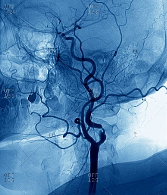 Color angiogram of the left carotid artery (black, center) in the neck of a 56 year old patient