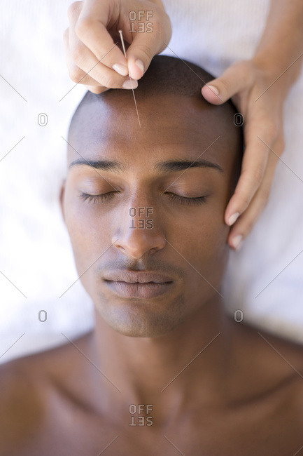 Acupuncturist inserting a needle into a client's forehead