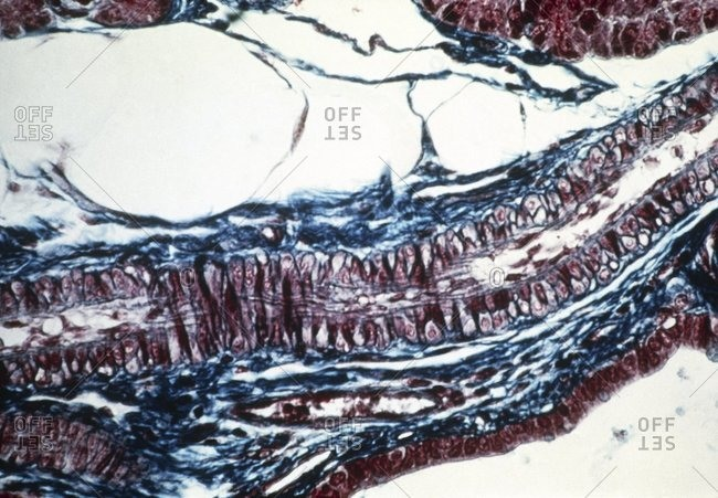 Light micrograph of a longitudinal section through a healthy arteriole. There are red blood cells (red) in its central cavity (upper right to lower left).