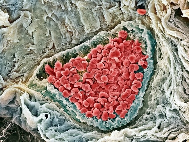 Red blood cells under a Color scanning electron micrograph of human red blood cells (erythrocytes) in a blood vessel in skin from a foreskin.
