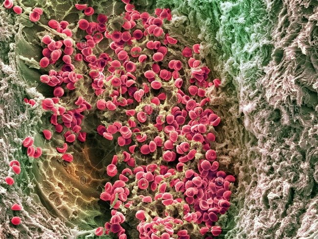 Color scanning electron micrograph of blood clotting in an ovarian follicle. The red blood cells (erythrocytes) are trapped in filaments of fibrin protein (brown).