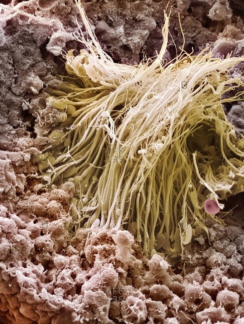 Color scanning electron micrograph showing sperm cells in a seminiferous tubule of the testis.