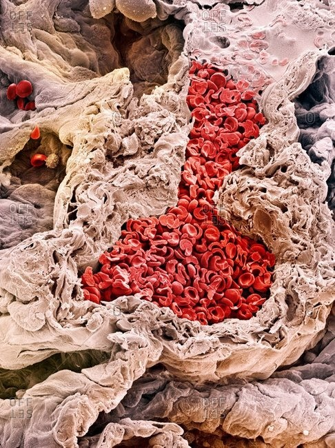 Color scanning electron micrograph a blood vessel around alveoli (air spaces, dark areas) in the lungs. Erythrocytes (red blood cells) are seen in the blood vessel.
