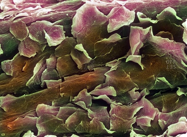 Color scanning electron micrograph of healthy human skin. The flaky outer layer is made up of dead skin cells, which are being constantly shed and replaced.