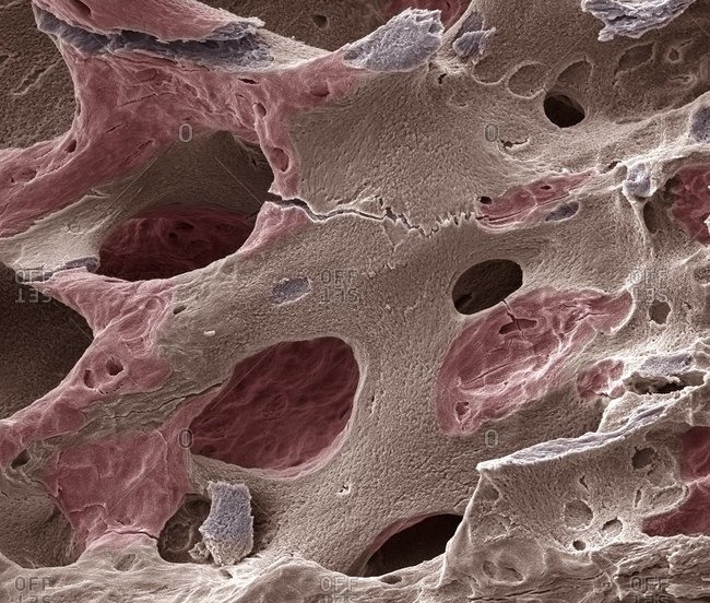 Osteoporotic bone under a Color scanning electron micrograph