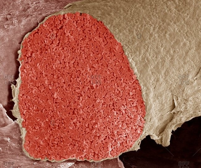 Color scanning electron micrograph of a section through a foetal vein filled with red blood cells (erythrocytes, red).