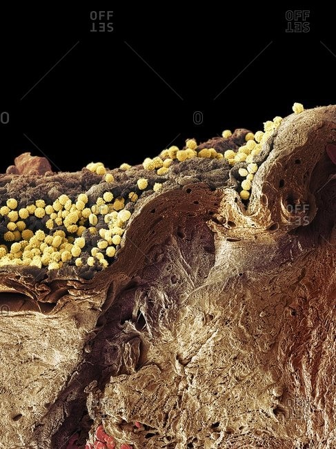 Pyoderma skin disease under a Color scanning electron micrograph.