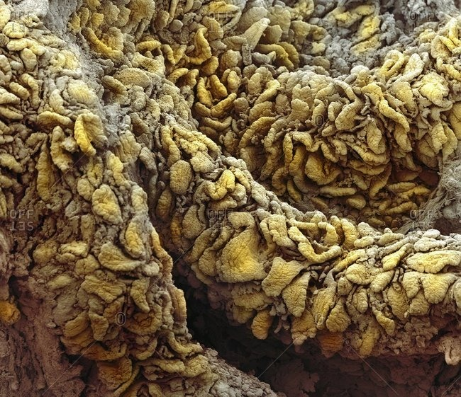 color scanning micrograph (SEM) of villi from the lining of the jejunum (part of the small intestine).