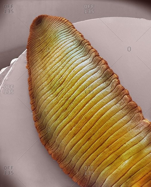 Magnification of a Leech under a Color scanning electron micrograph.