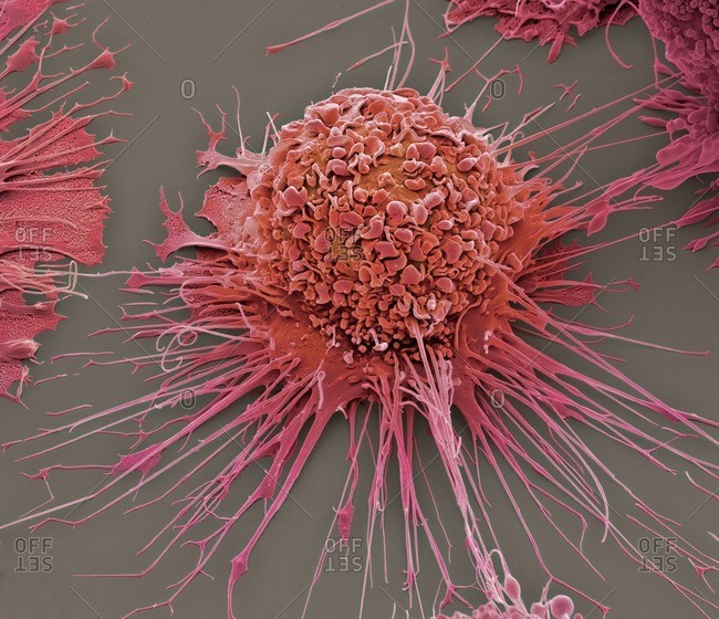 Activated human macrophage under a Color scanning electron micrograph.