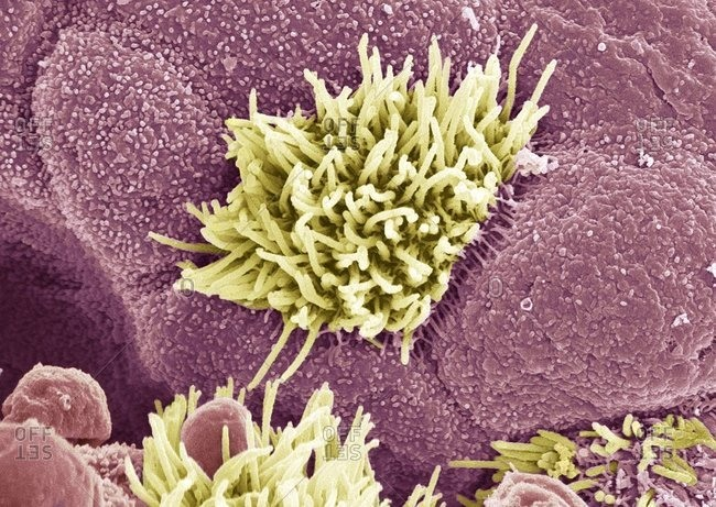 Magnification view of Trachea (wind pipe) lining under a Color scanning electron micrograph