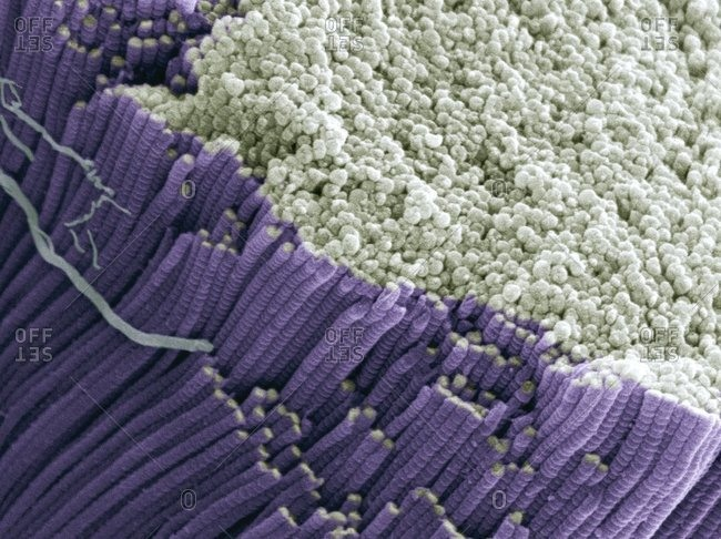 Magnification view of a tendon under a Color scanning electron micrograph showing bundles of collagen fibers