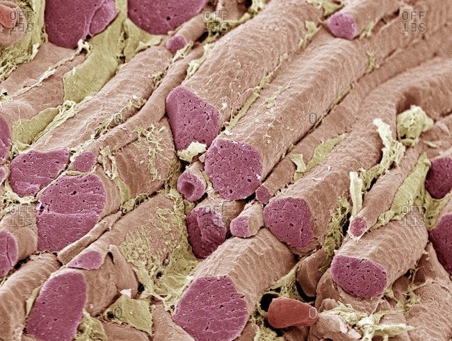 Magnification view of skeletal muscle fibers under a Color scanning electron micrograph