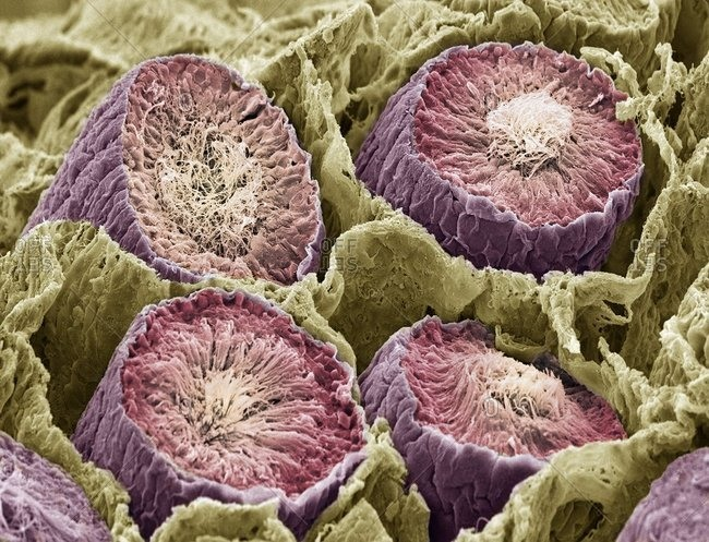 Magnification view of sperm production under a Color scanning electron micrograph showing sperm cells (spermatozoa) in the seminiferous tubules of the testis