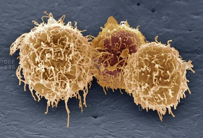 Magnification view of white blood cells under a Color scanning electron micrograph