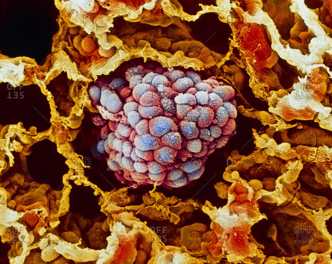 Magnification view of Lung cancer under a color scanning electron micro- graph of a small cancerous tumor (blue) filling an alveolus of the human lung.