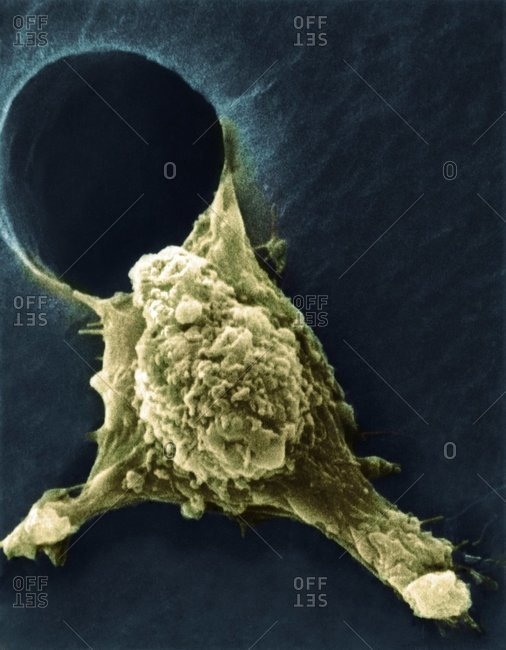 Metastasis of a cancerous cell under a Color scanning electron micrograph of a tumor cell