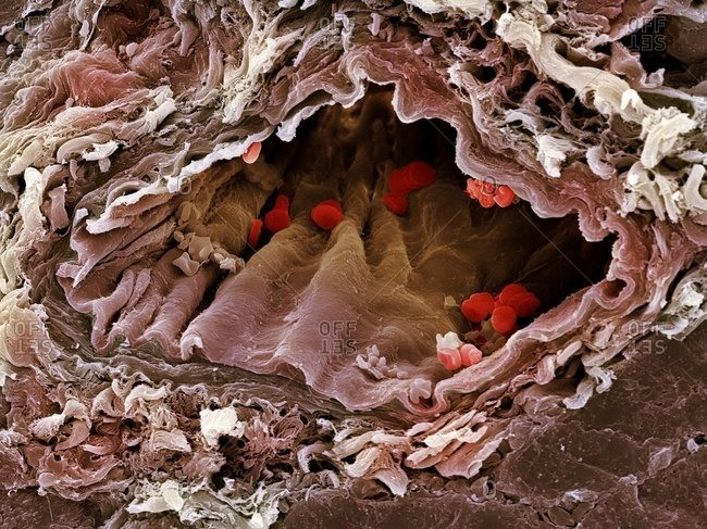 Artery under a Color scanning electron micrograph of a sectioned artery containing red blood cells, erythrocytes, red.