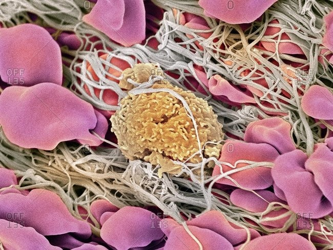 Color scanning electron micrograph of a blood clot. The red blood cells (erythrocytes) are trapped in filaments of fibrin protein (gray).