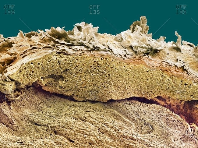 Color scanning electron micrograph of a section through healthy skin.