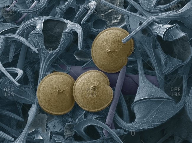 Three Prorocentrum dinoflagellates (blue) under a Color scanning electron micrograph