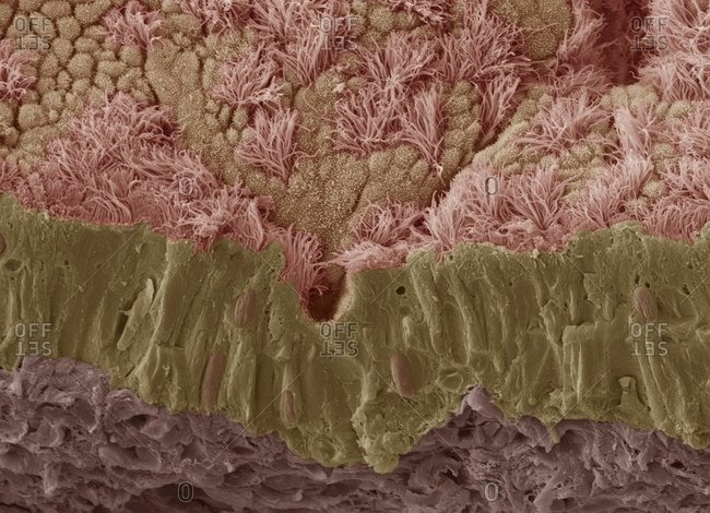 Color scanning electron micrograph of a fractured mucous membrane of the trachea (wind pipe), showing the epithelium and underlying connective tissue.