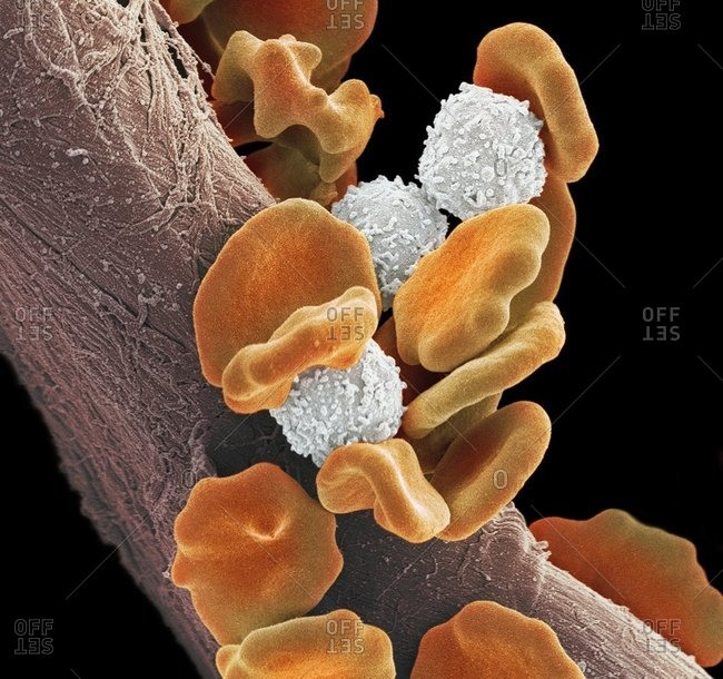 Leukemia blood cells under a Color scanning electron micrograph. Red blood cells (erythorocytes, orange) and B lymphocyte white blood cells (white).