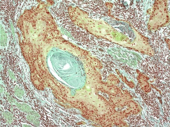 Light micrograph of a section through a squamous carcinoma of the skin.