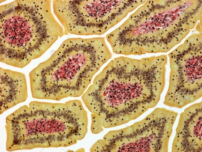 Intestinal villi. Light micrograph of a transverse section through villi of the intestine. Columnar epithelial cells (orange) surround lamina propria connective tissue (yellow). Magnification: x100 when printed at 10 centimeters wide.
