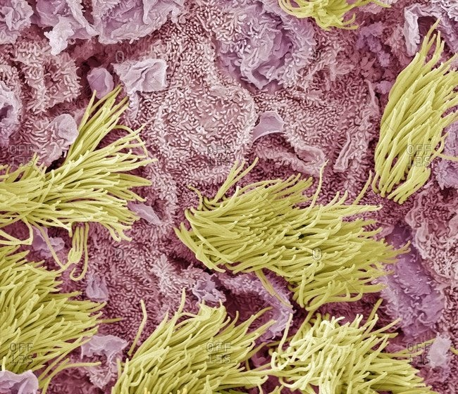 Uterine cancer under a Color scanning electron micrograph of adenocarcinoma (cancer) of the uterus.