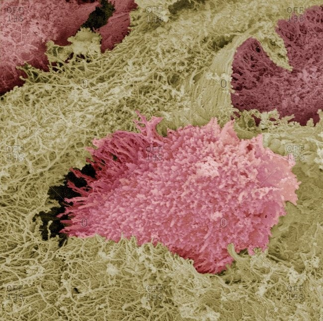 Hyaline cartilage under a Color scanning electron micrograph of a freeze-fractured section through hyaline cartilage, a semi-rigid connective tissue, from the trachea (windpipe).