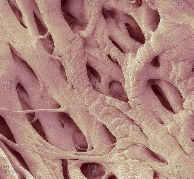 Heart strings under a Color scanning electron micrograph.