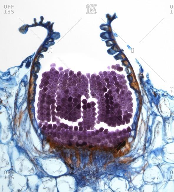 Light micrograph of a section through an aeciospore from a Puccinia sp. rust fungus.