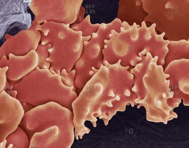 Magnification view of crenated red blood cells under a Color scanning electron micrograph