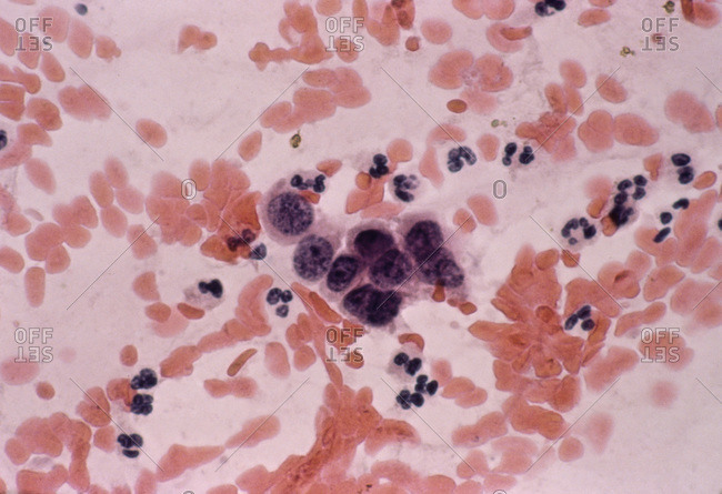 Light micrograph of a vaginal smear showing adenocarcinoma cells (center). Vaginal cancer.