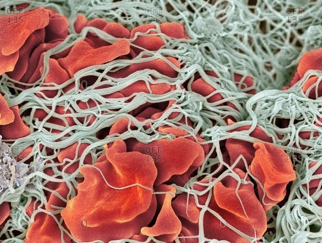 Color scanning electron micrograph of a blood clot. The red blood cells (erythrocytes) are trapped in filaments of fibrin protein (green).