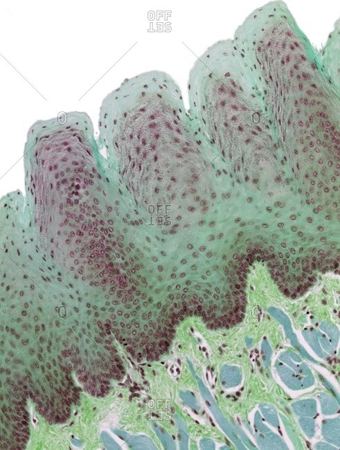 Light micrograph of a section through the thick keratinized epithelium of a foliate papillae of the tongue.