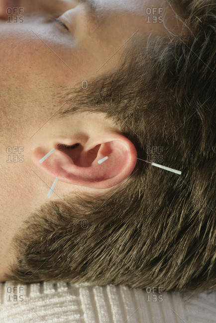 Man receiving acupuncture on ear