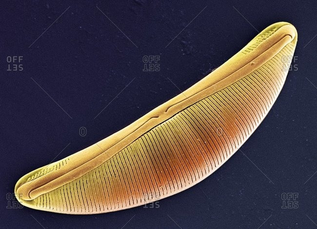 Magnification of a planktonic diatom under a Color scanning electron micrograph