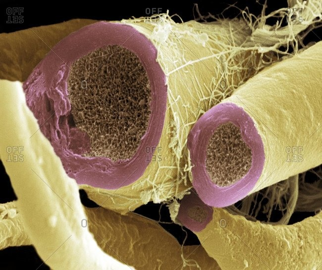 Magnification view of myelinated nerve fibers under a Color scanning electron micrograph