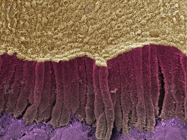 Magnification view of a fractured bile duct under a Color scanning electron micrograph