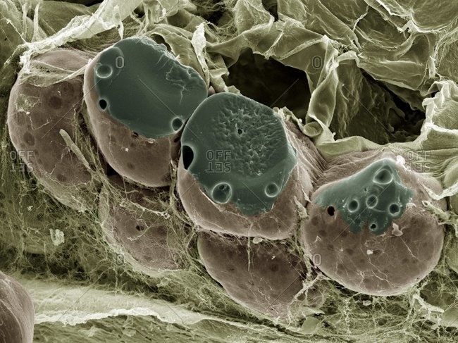 Magnification view of fat (adipose) tissue under a Color scanning electron micrograph
